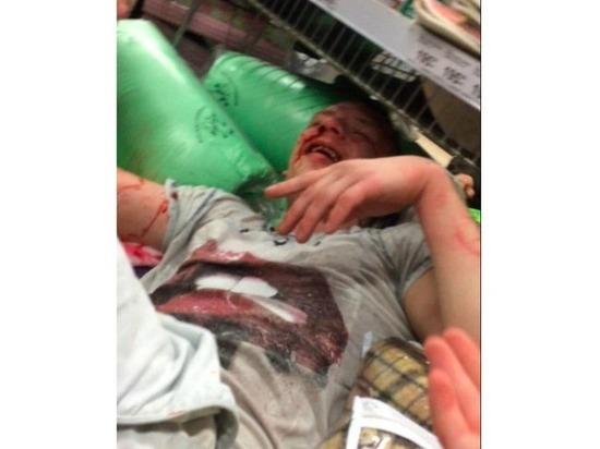 В Калининграде охраники супермаркета избили посетителя