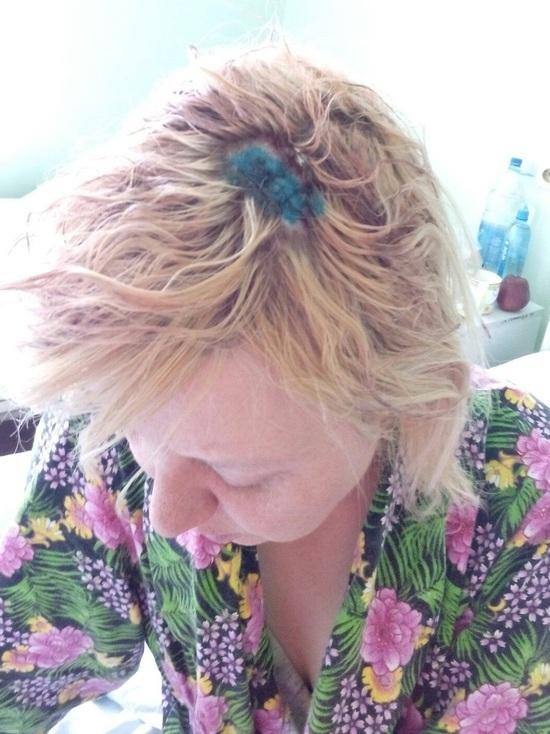 Калининградка получила травму головы на съемках сериала с Прилучным