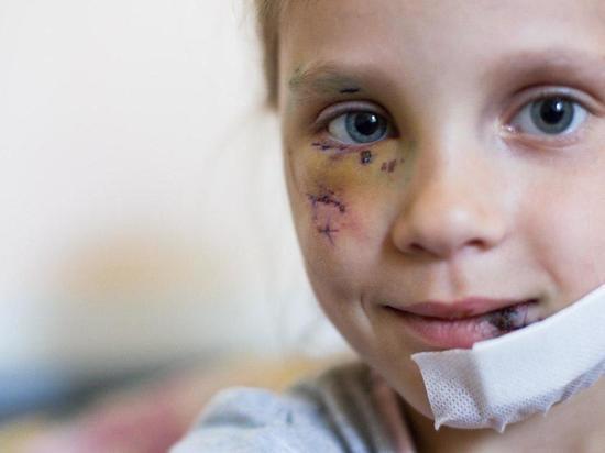 В Калининграде бездомный пес разодрал лицо шестилетней девочки